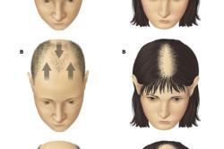 Рисунок 1. Степени потери волос при облысении