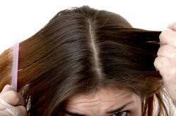 Увеличение количества перхоти при гиперкератозе кожи головы