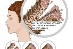 Виды состояния волос